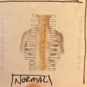 A normal scan